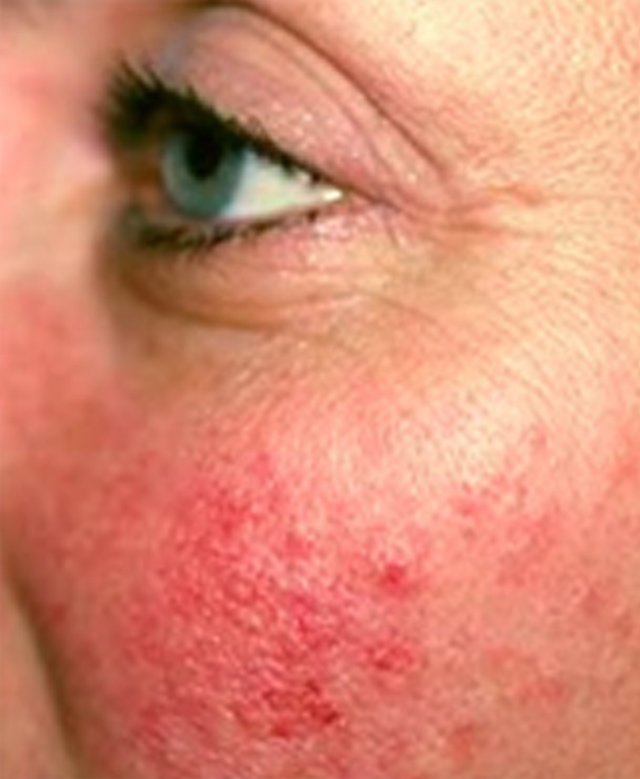 ThermaVein Treatment | Lisa Harris Skin Science™
