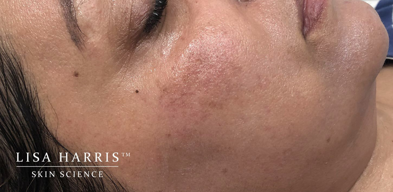 Cool Laser Treatment | Lisa Harris Skin Science™