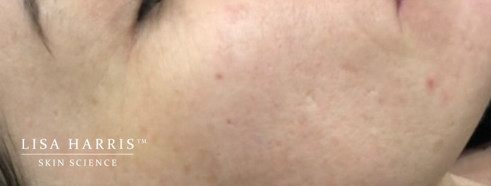 Side of ladies face showing not very smooth skin