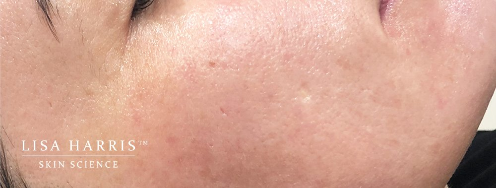 Side of ladies face showing very smooth skin