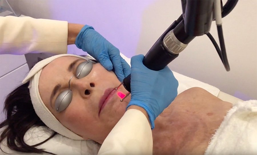 Lady laying down receiving full transformation cool laser treatment