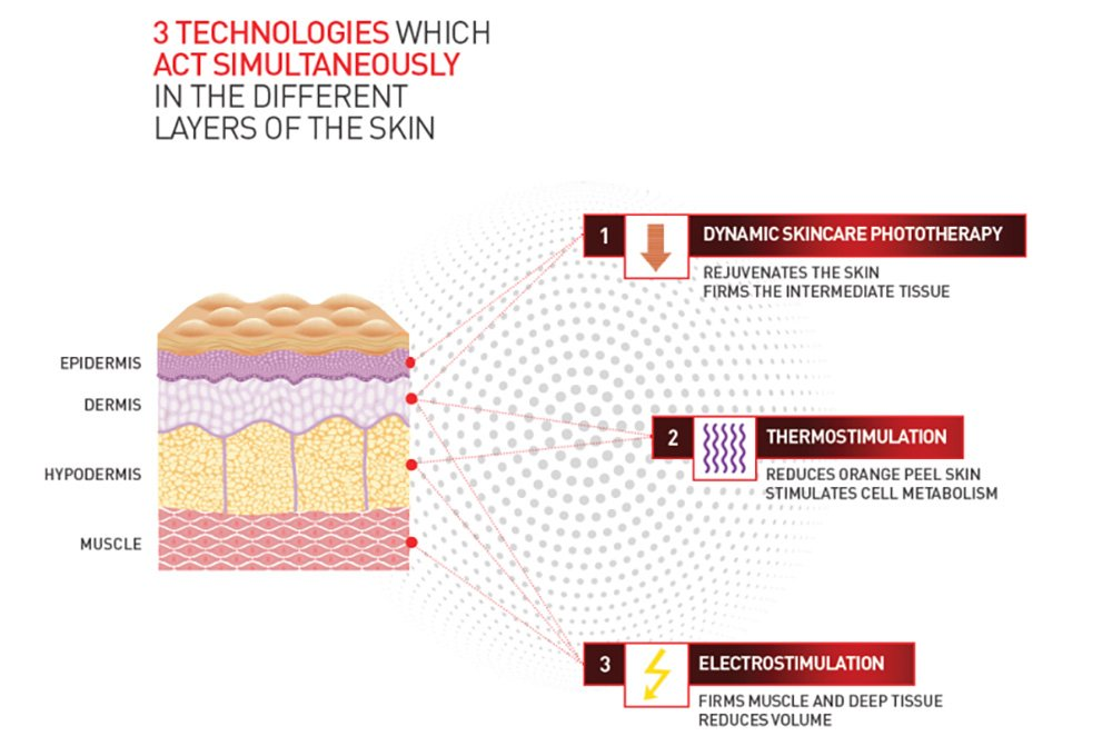 Graphic showing the different layers of the skin