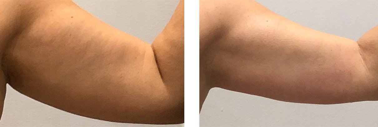 Before and After pictures of Slim Drone treatment