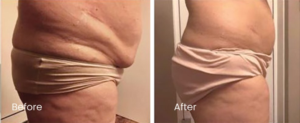 Before and After pictures of Slim Drone treatment(