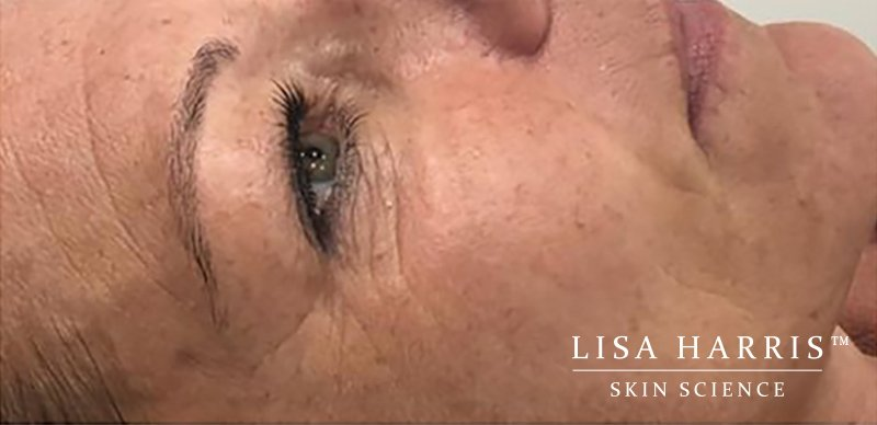Lady with wrinkles around eyes before collagen wave treatment