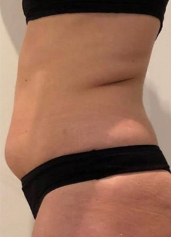 Side view of female stomach before slimdrone treatment