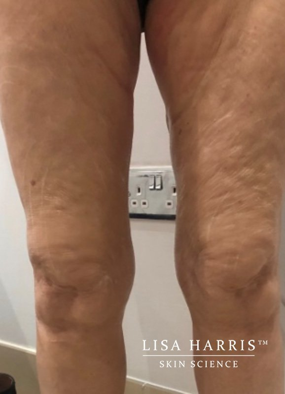 Side view of female legs before slimdrone treatment
