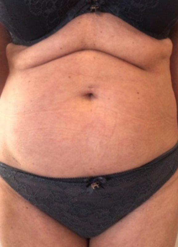 Image of female stomach before slimdrone treatment