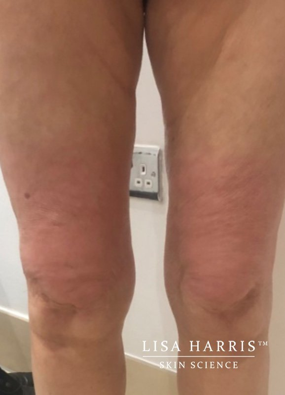 Side view of female legs after slimdrone treatment