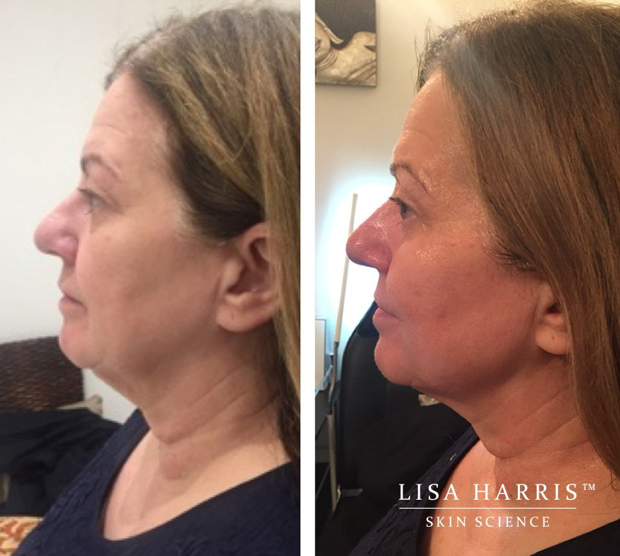 Before and after image of skin treatment